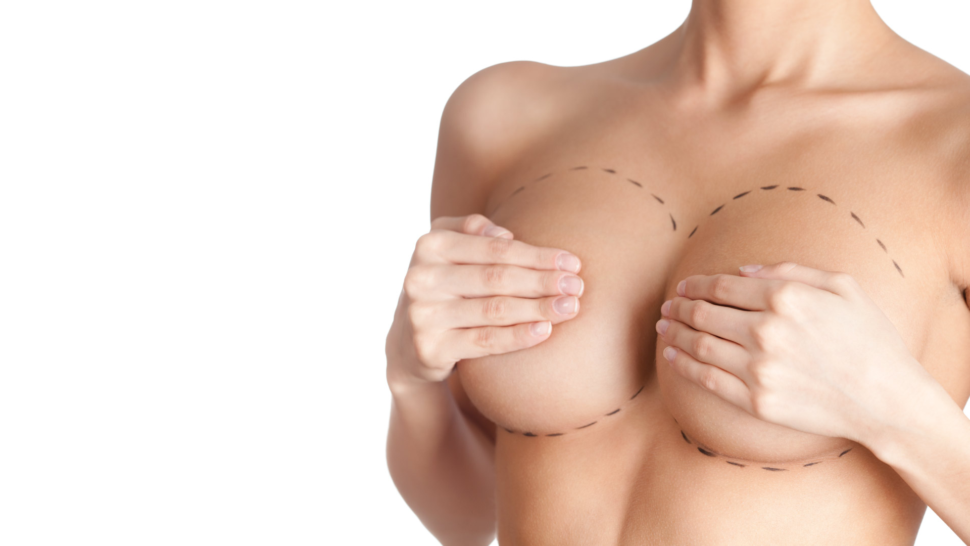 Breast-Reduction-IMED
