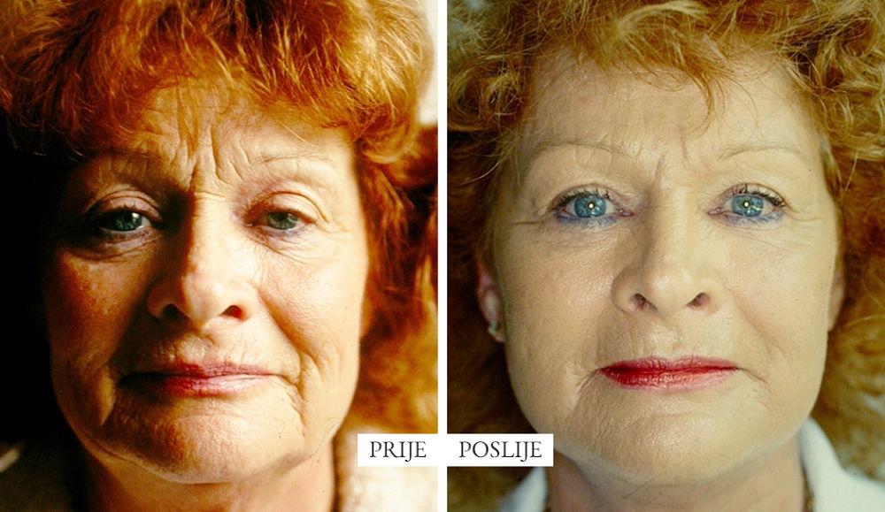 facelifting-povise-zasto-dr-boric_opt