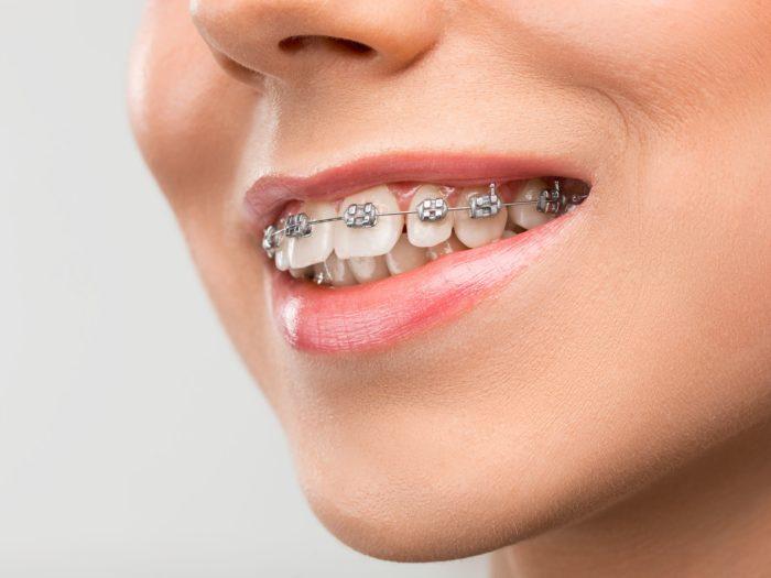 aparatic za zube zagreb