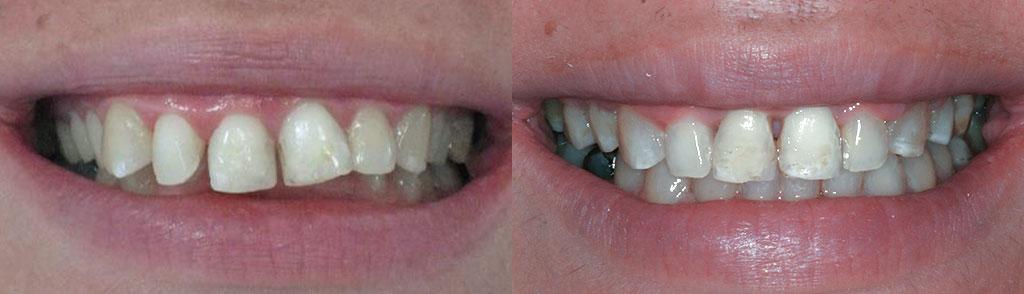 ortodoncija_slucaj_61