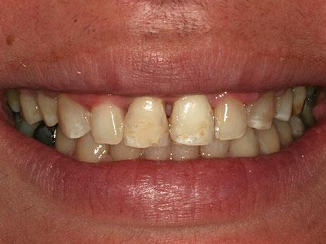 ortodoncija_slucaj_61_poslije