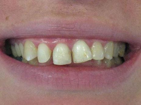 ortodoncija_slucaj_61_prije