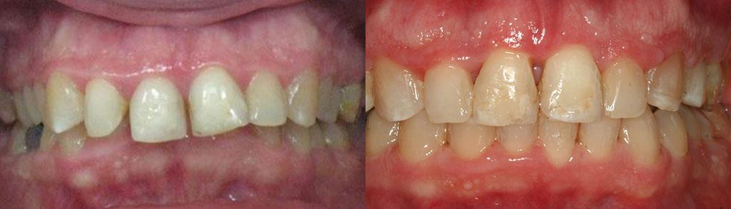 ortodoncija_slucaj_62