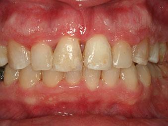 ortodoncija_slucaj_62_poslije