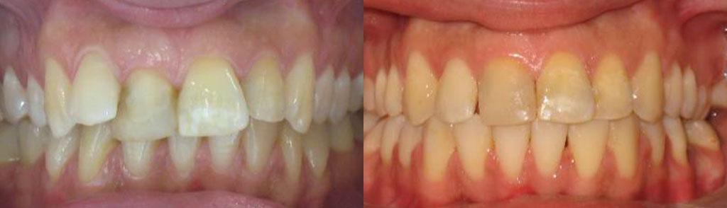 ortodoncija_slucaj_63