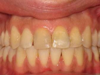ortodoncija_slucaj_63_poslije