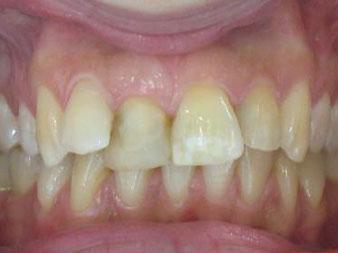 ortodoncija_slucaj_63_prije