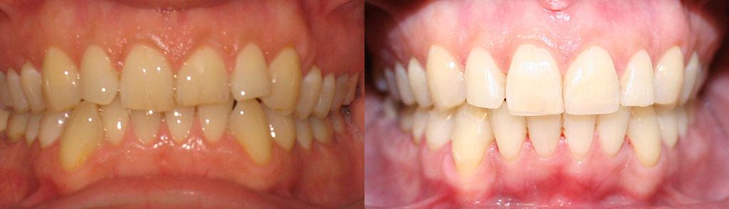 ortodoncija_slucaj_65
