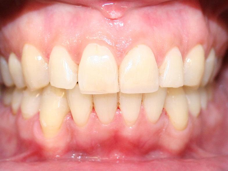 ortodoncija_slucaj_65_poslije