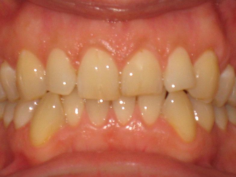 ortodoncija_slucaj_65_prije
