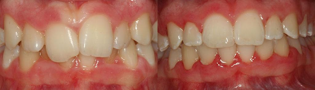ortodoncija_slucaj_66