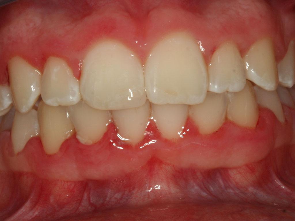 ortodoncija_slucaj_66_poslije