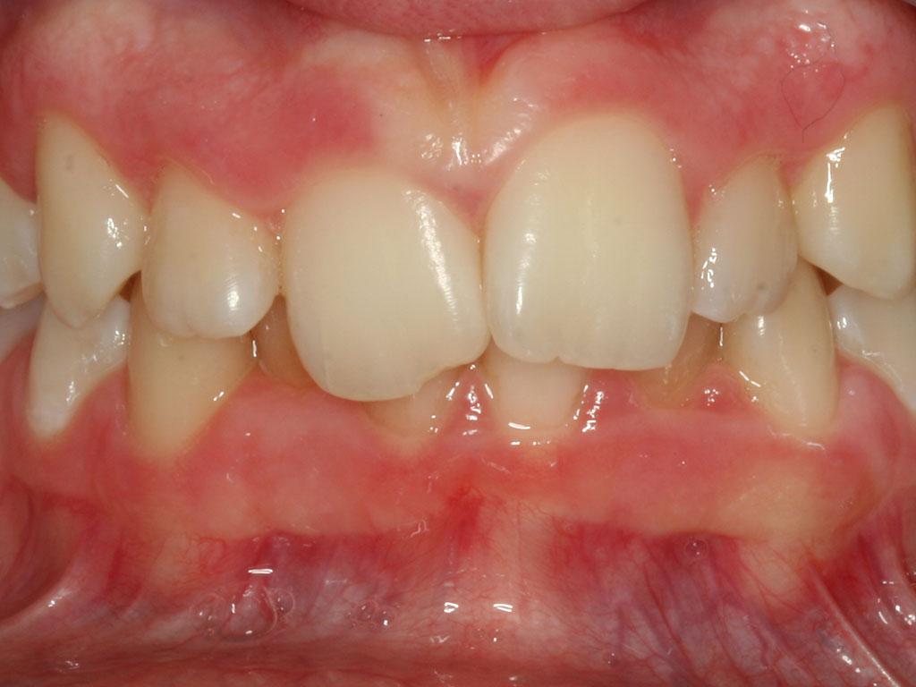 ortodoncija_slucaj_66_prije